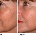 pic-before-after-skin-resurfacing