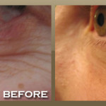 laser-skin-tightening-eye