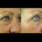palomar-laser-machine-female-eye-lines